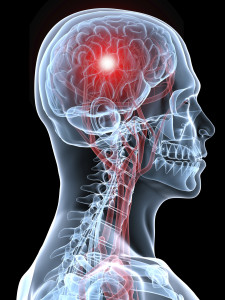 santa rosa brain injury lawyer